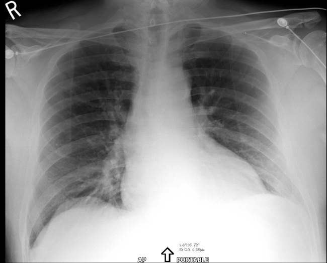 Imaging of the Chest: A Teaching File